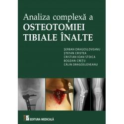 Analiza complexă a osteotomiei tibiale înalte - Ș. Dragosloveanu, Ș. Cristea, C. Ioan Stoica, B. Crețu, C. Dragosloveanu